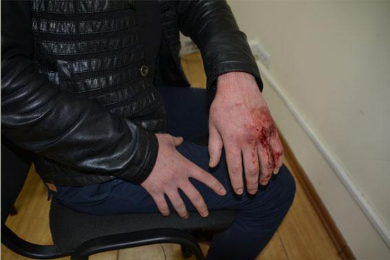 Дівчина, яка відпочивала в компанії трьох вбивць, знімала криваву розправу над міліціонером на камеру