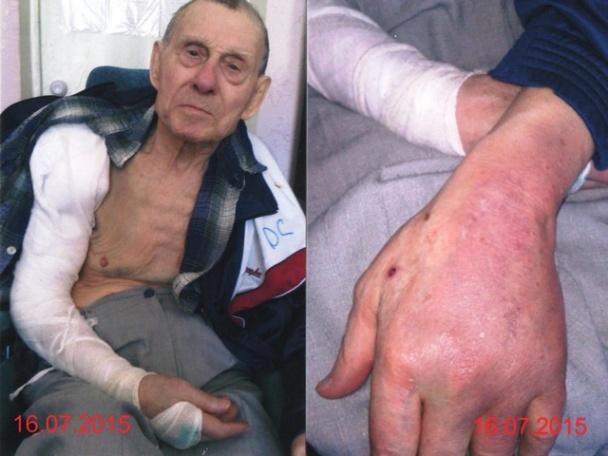 Скандал на Черниговщине: врачей хосписа обвиняют в истязании инвалида (ФОТО)