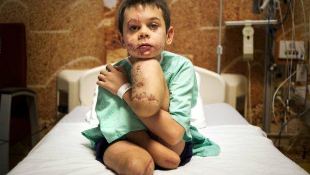 Фото скаліченого на Донбасі хлопчика перемогло у міжнародному конкурсі (18+)