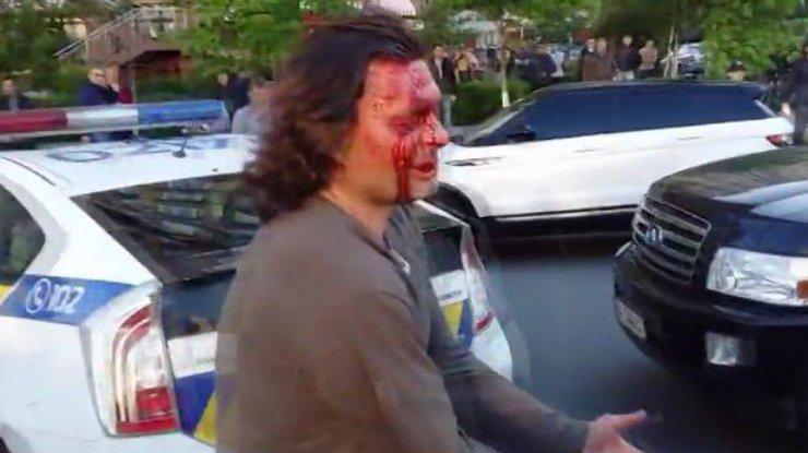 Погоня поліції за Infiniti у Києві: стало відомо, ким був водій (ФОТО)