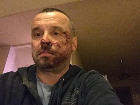 Лідер донецької «Батьківщини» заявив, що його побили співробітники поліції