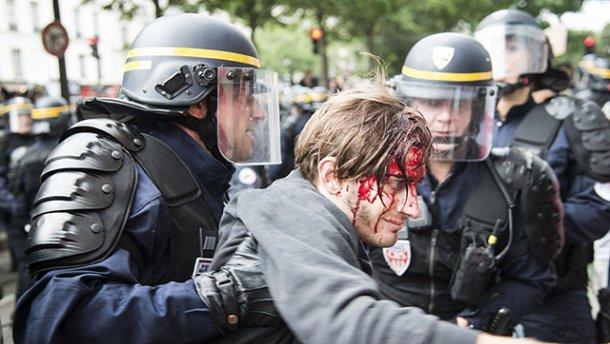 З'явилися фото з протестів у Франції, де поранили та затримали десятки людей