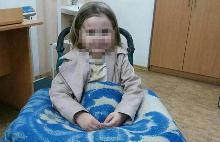 На Тернопільщині дід розтрощив онучці череп, а потім наклав на себе руки: подробиці шокують