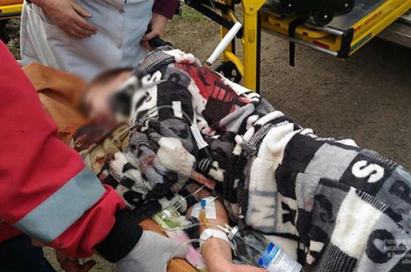 Серце розриваєтся від такої жорстокості: Підлітки порізали шию восьмикласнику заради комп'ютера!(ФОТО18+)