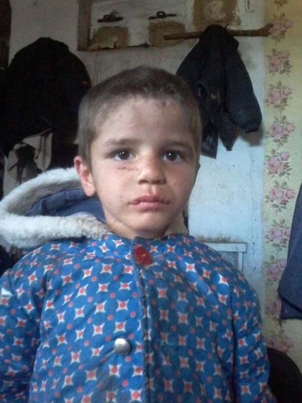 Багатодітна мати з народження нещадно катувала молодшого сина: історія Сашка шокувала країну