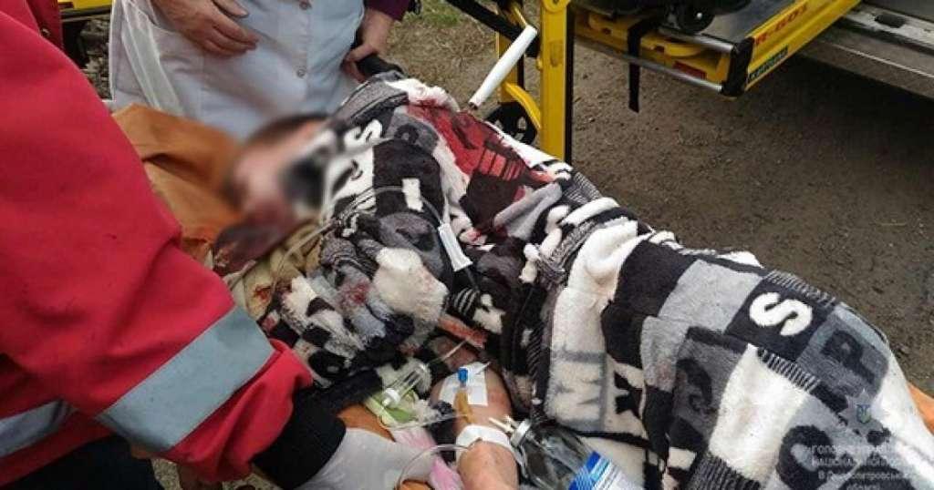 Проколов наскрізь: у Києві стався жорстокий напад на підлітка, там було справжнє жахіття