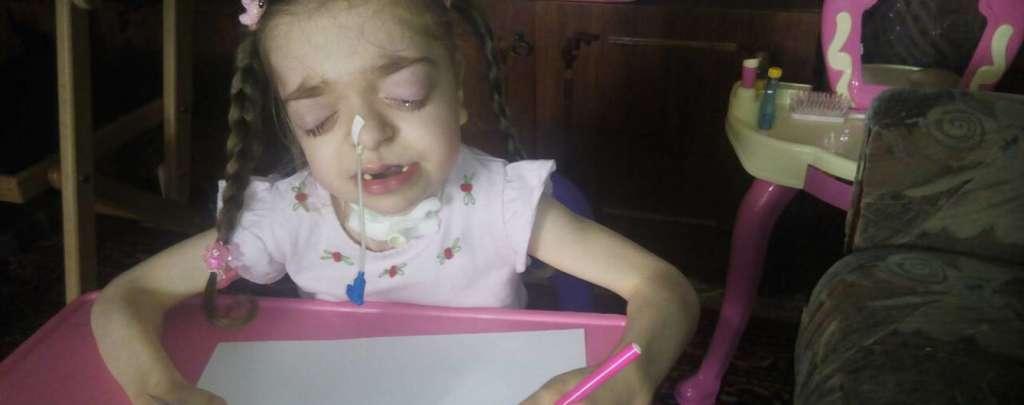 Пережила 4 коми, не може їсти і ходити… Маленька Аліса сподівається на вашу допомогу