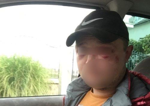 """""""Паліть їм машини, а їх кидайте в канаву"""": Поїздка по гриби у Закарпаття закінчилася… Людська жорстокість лякає"""