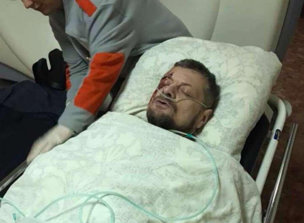 """Інших поранених залишили на вулиці: Після вибуху Мосійчука відвезли на """"Лексусі"""" у приватну лікарню"""