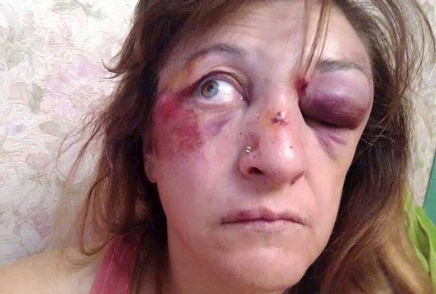 """Жорстоко побили та погрожують розправою над дітьми. В Києві """"покарали"""" лікарів,які виступили проти корупції"""