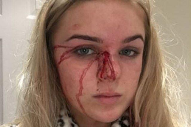 """""""Прослизнула на вулицю через вікно, абсолютно голою…"""": Дівчина рік дозволяла хлопцю бити та гвалтувати її (ФОТО)"""