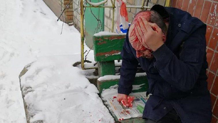 """""""Виходив з під'їзду, аж раптом…"""": Чоловіка жорстоко побили поблизу пункту поліції"""