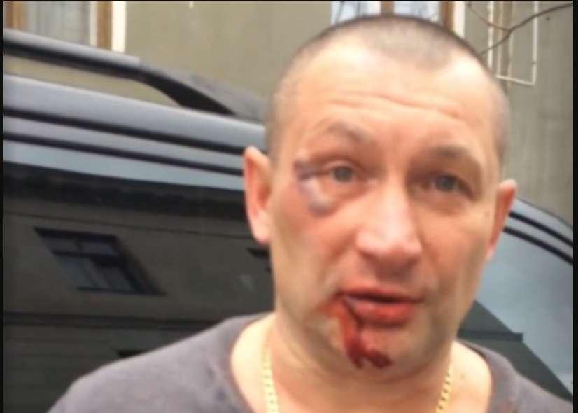"""""""Тому, що """"укроп і ф*шист"""""""": У Криму жорстоко побили чоловіка лише через те, що він українець"""