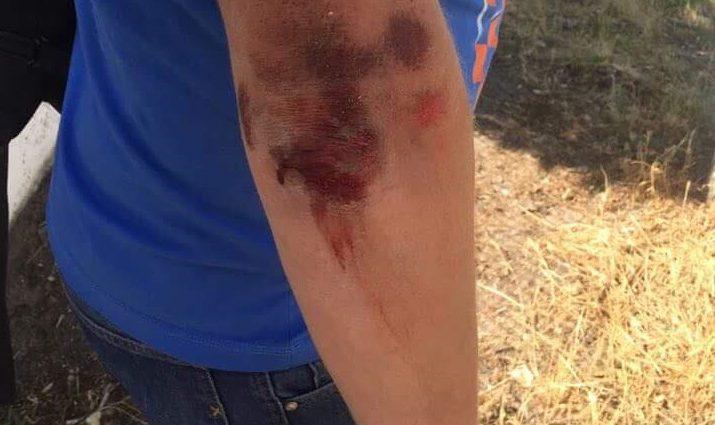 """""""Це неоголошена війна проти громадян"""": У Херсоні жорстоко побили відомого журналіста"""