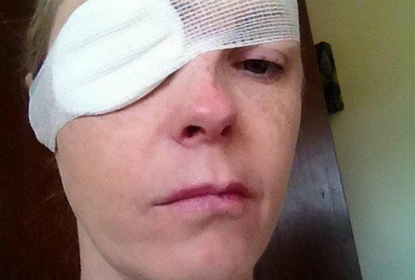 """""""Я не могла говорити протягом двох років"""": Жінці паралізувало обличчя, а все через укус…"""