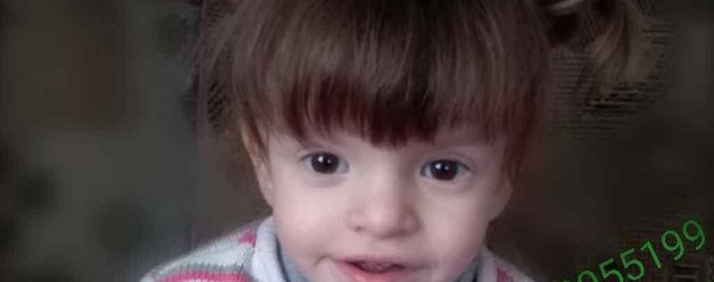 Цьому янголятку потрібна дорога операція: допоможіть маленькій Яні почути навколишній світ