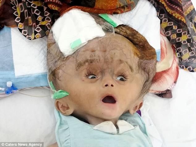 """""""Голова почала рости шаленими темпами"""": Лікарі пішли на відчайдушний крок, щоб врятувати дівчинку-""""інопланетянку"""""""