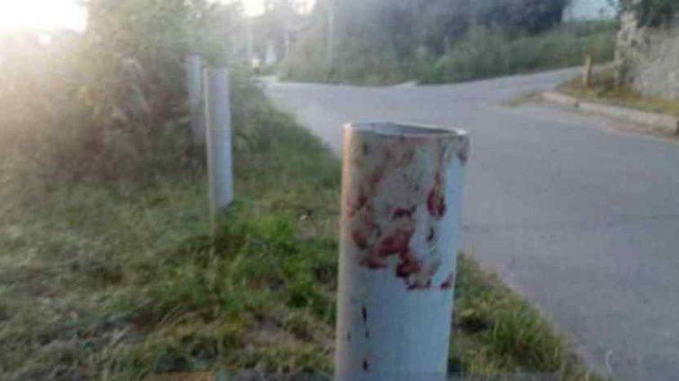 """""""Били поки не втратила свідомість"""": Жінку жорстоко побили через зауваження (ФОТО)"""
