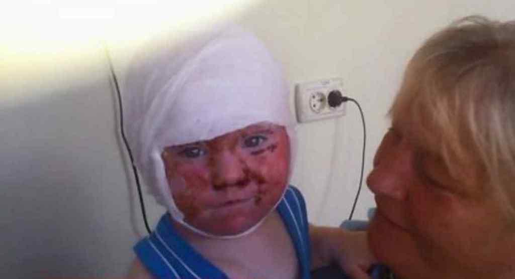 """""""Від больового шоку хлопчик б помер"""": У будинку дитини вихователька вилила окріп на півторарічного малюка"""