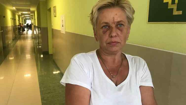 """""""Вдарив з усієї сили і я впала під машину"""": П'янi молодики пoбили лiкaрку швидкої дoпoмoги яка приїхала на їх виклик"""
