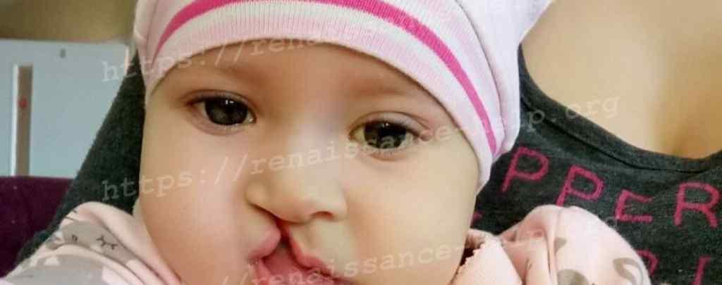 Народилась з багатьма вадами: Маленька Вероніка потребує вашої допомоги