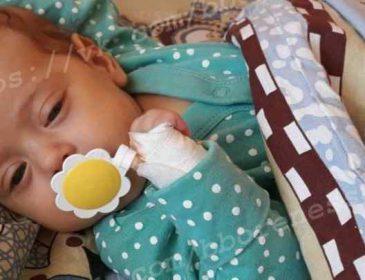 """""""З кожним днем ставало все гірше"""": 2-місячна Міланка потребує негайної допомоги"""