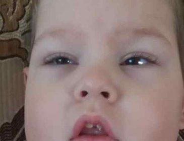 З самого народження важка хвороба переслідує хлопчика: Дмитрик потребує вашої допомоги