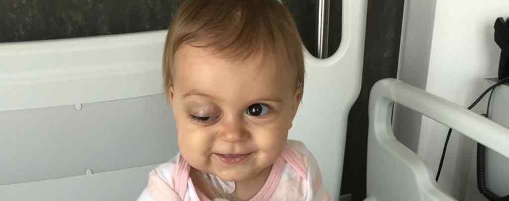Життя крихітки під загрозою через важку недугу: Соня потребує вашої допомоги