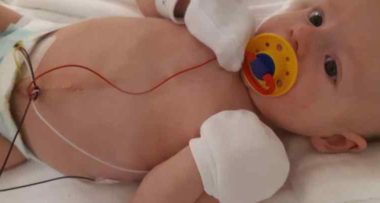 """Малюк дуже хоче жити"": Батьки маленького Артемка благають про допомогу"