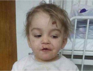 Немає живого місця: На Львівщині матір жорстоко побила свою чотирирічну доньку