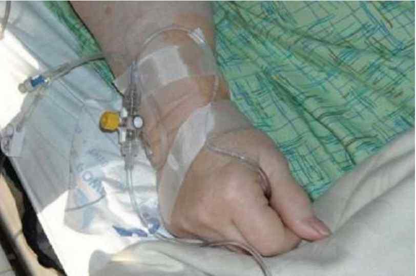 Заразилася через немите яблуко: на Львівщині жінка потрапила до лікарні з небезпечною інфекцію
