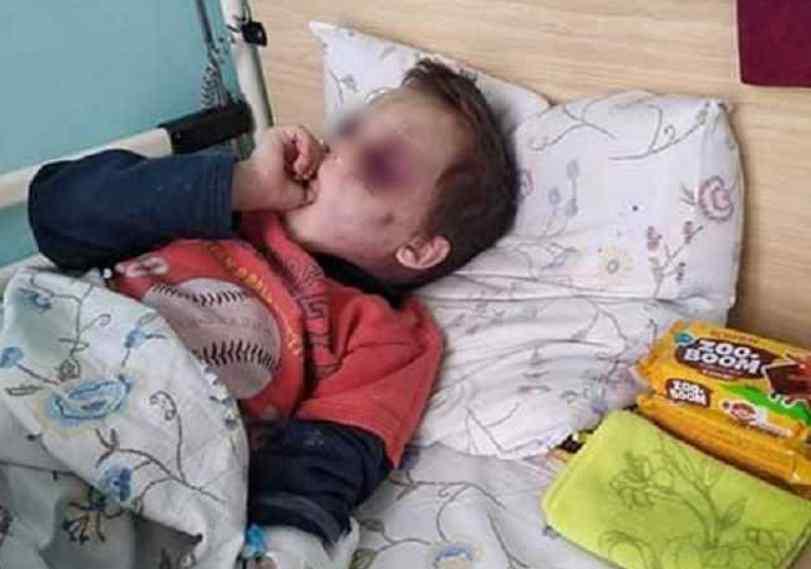 Під Вінницею по-звірячому побили 6-річну дитину: нові подробиці і моторошні фото