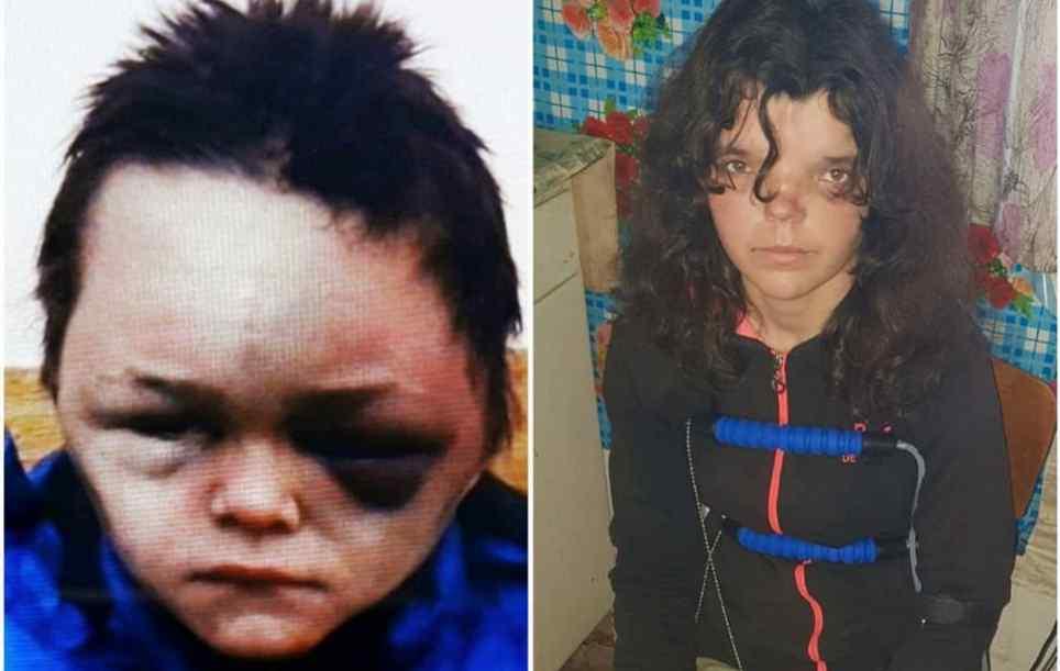 Очі чорні від побоїв: повідомили моторошні подробиці про побиття 6-річної дитини на Вінничині