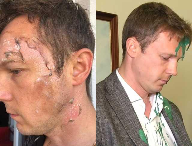 """""""Обманювати – це у них в крові"""": Заступник Садового імітував опіки на обличчі після скандалу в ЛМР"""