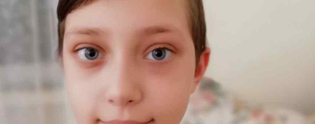 Життя Кирилка залежить від коштів, які потрібно буде сплатити за лікування