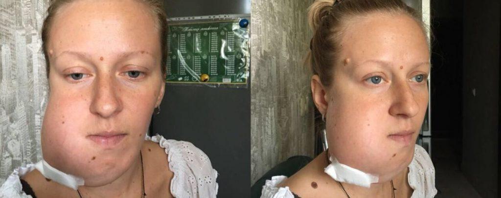 Радість від вагітності Аліні зіпсувало звістка про онкологію