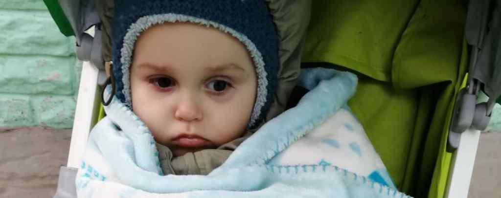 Лікарі видалили Микиті пухлину з голови і тепер необхідне протирецедивне лікування