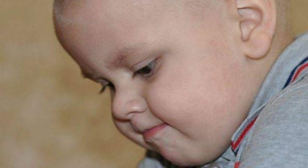 2-річний Артур потребує негайної допомоги