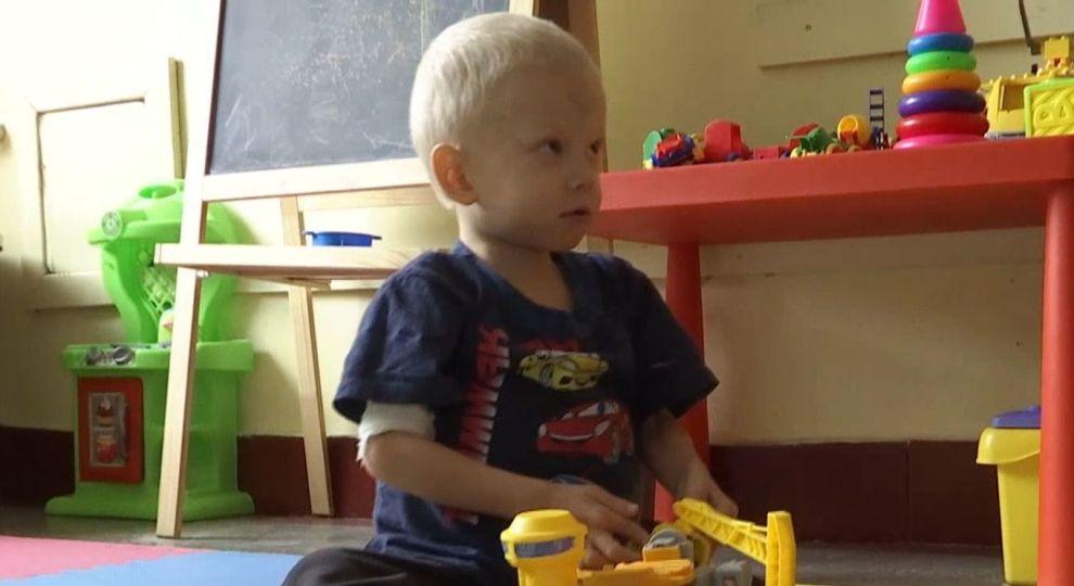 Термінова допомога потрібна 6-річному Льоні з Києва