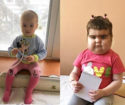 """""""На фото одна дівчинка – різниця один рік"""": Допоможіть Даринці перемогти страшну хворобу"""