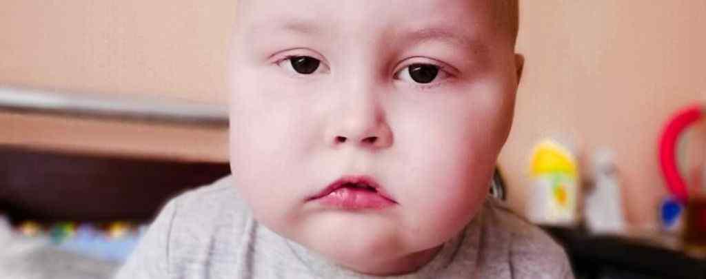 """""""Наш діагноз """"Гострий лімфобластний лейкоз"""": Допоможіть малюку Артемку побороти хворобу"""