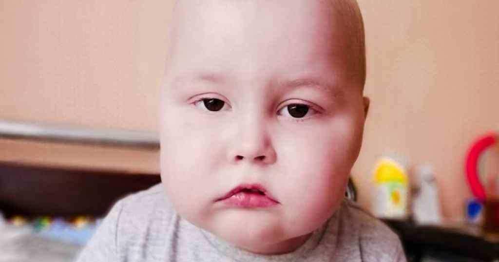 Гострий лімфобластний лейкоз! Маленький Артемко потребує допомоги: почалась ремісія. Життєво необхідна терапія