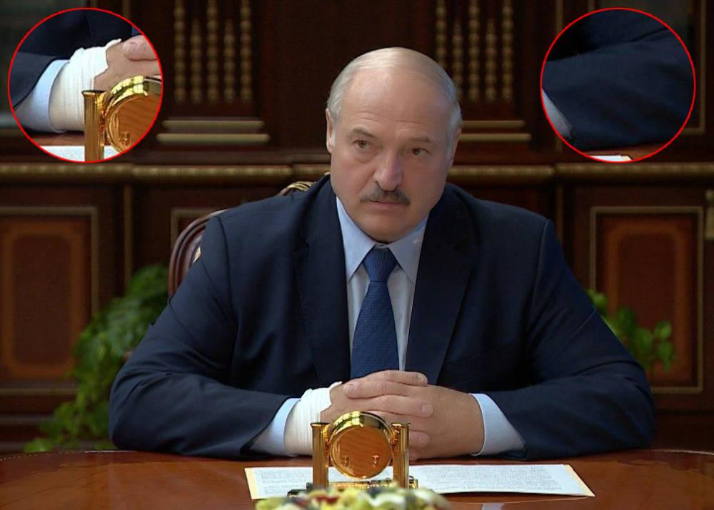 """З катетером на кисті! Лукашенка """"спустили зі сходів"""" – стан критичний. Охорона вела за руки – Коля ридає"""