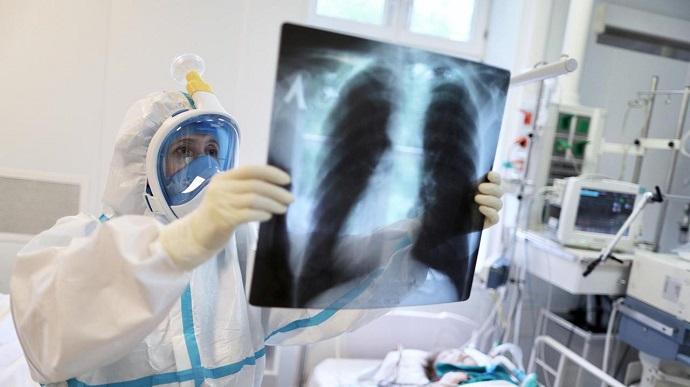 Знову сумний антирекорд! Оновлена статистика по коронавірусу в Україні. Ситуація напружена – 64 летальних