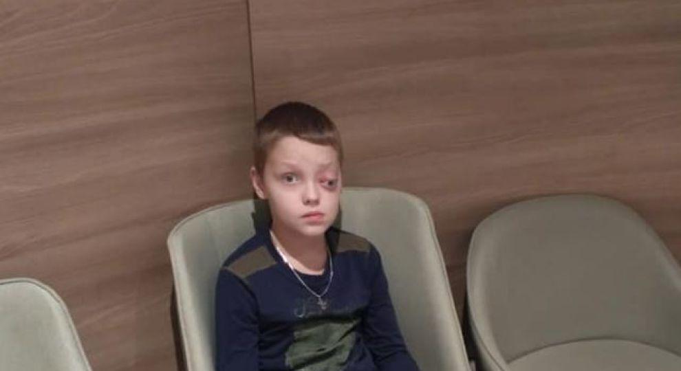 Онкологія вразила око хлопчика. Врятувати життя сина просить мама Олега