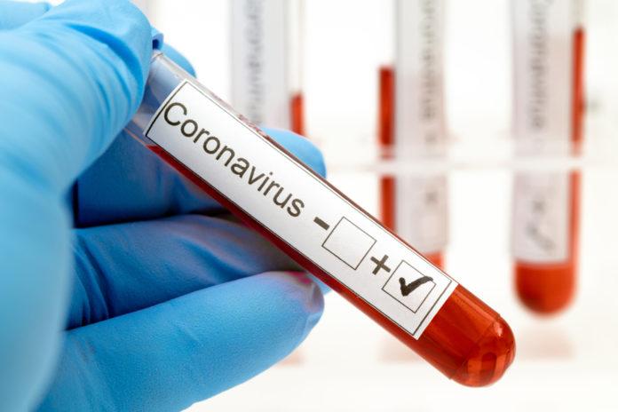 Цифра зросла! Українцям повідомили статистику по коронавірусу на 20 січня: Київ попереду