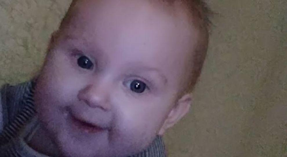 Крихітна Єва потребує вашої допомоги. Дівчинці потрібно лікування, за яке готові взятись лише в Німеччині
